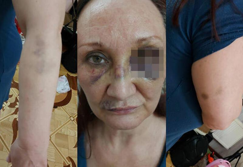 МВД распространило заявление в связи с избиением тещи экс-футболиста