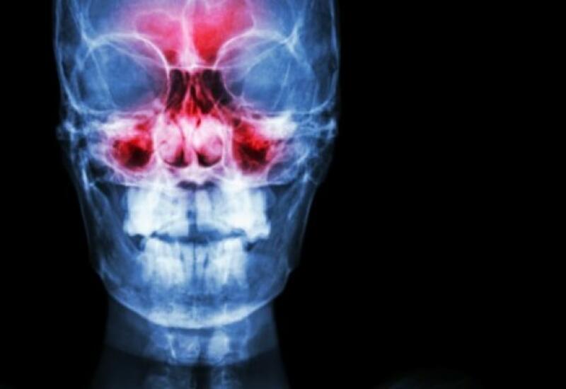 Врач рассказал, что заложенность носа является одним из признаков опасной болезни