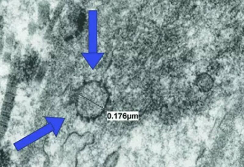Ученые выяснили, как коронавирус влияет на потенцию