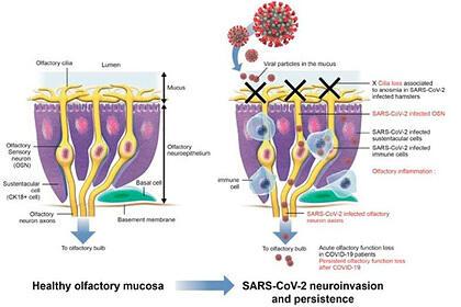 Ученые объяснили главный симптом при коронавирусе