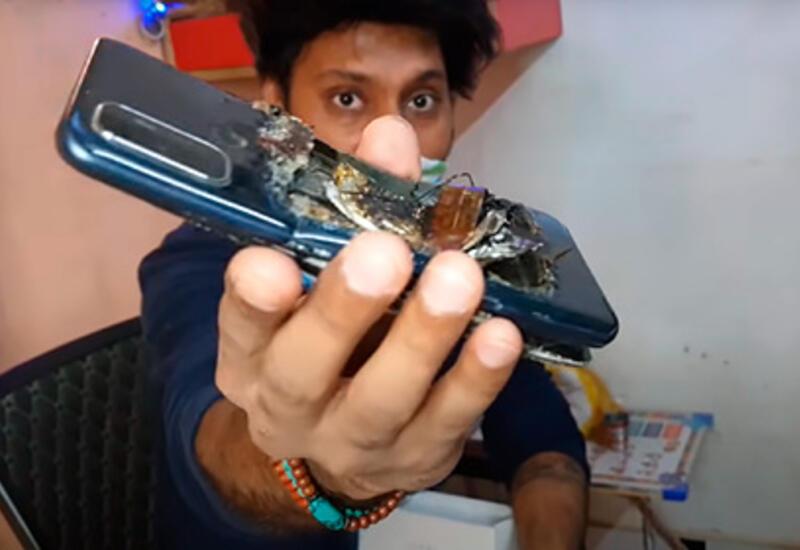 В Индии смартфон взорвался в кармане владельца