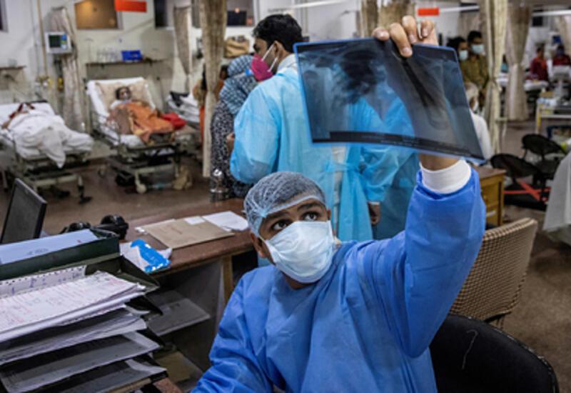 Индийский штамм коронавируса начал вызывать другие болезни
