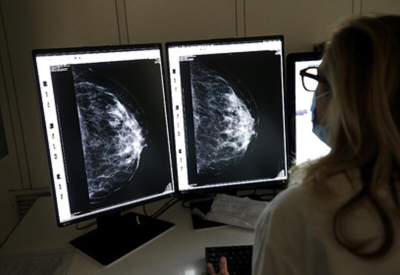 Онкологи нашли лечение для женщин с «геном Анджелины Джоли»