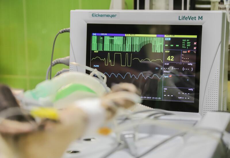Хирурги впервые имплантировали человеку полностью искусственное сердце