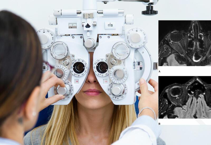 Пятна перед глазами могут быть симптомом постковидного осложнения
