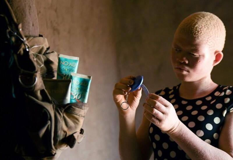 Колдуны начали чаще убивать альбиносов из-за пандемии COVID-19