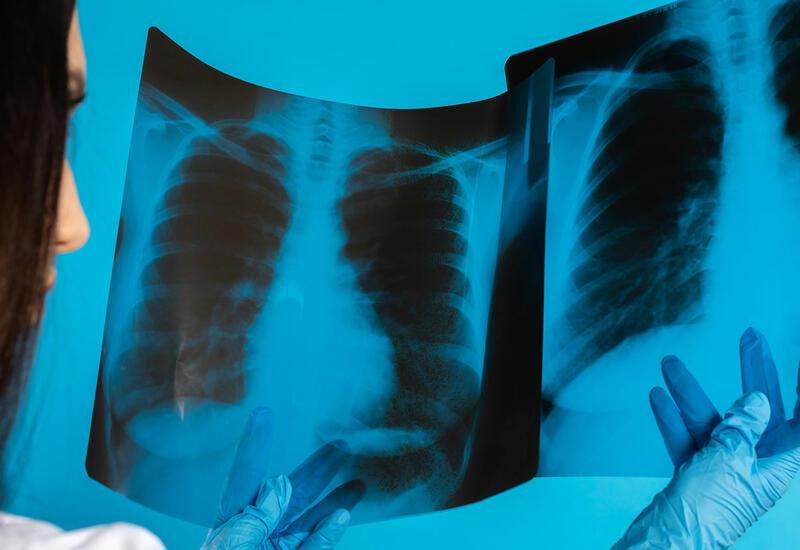 Найден фактор, снижающий риск смерти от рака легких на 16%