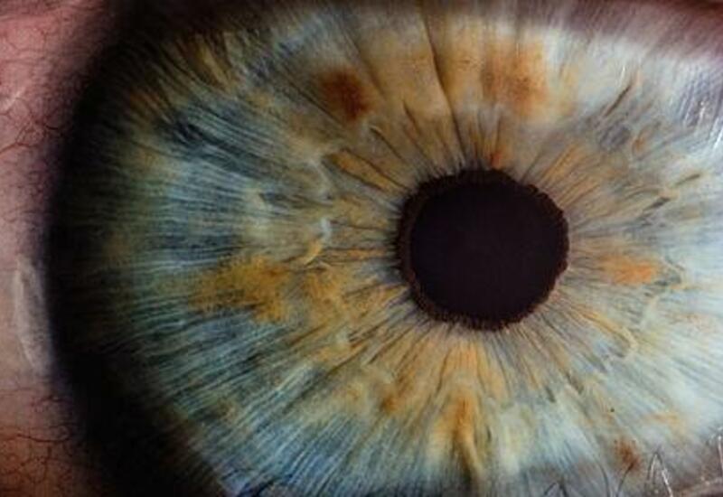 Выяснен механизм развития смертельного вида рака глаза