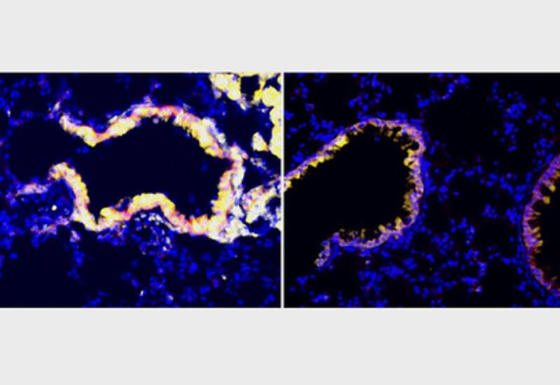 Иммунную систему заставили побеждать рак