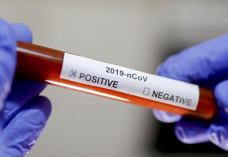 В Иране от коронавируса за сутки умерли еще 239 человек