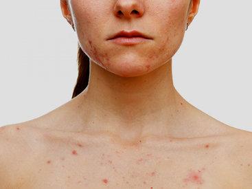 О чем свидетельствует сыпь на лице и шее