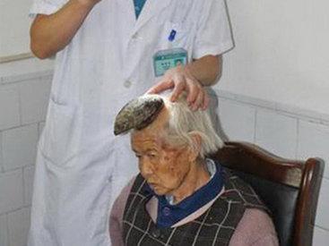 У пожилой китаянки на голове вырос рог - ФОТО