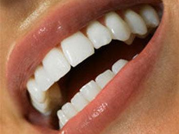 Найден легкий способ вернуть белизну зубов