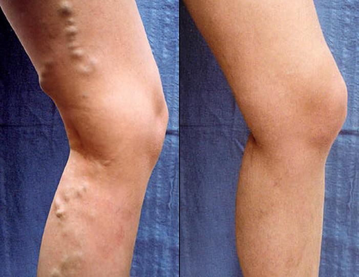 Лазерное лечение варикоза в HB Guven Klinik - ФОТО