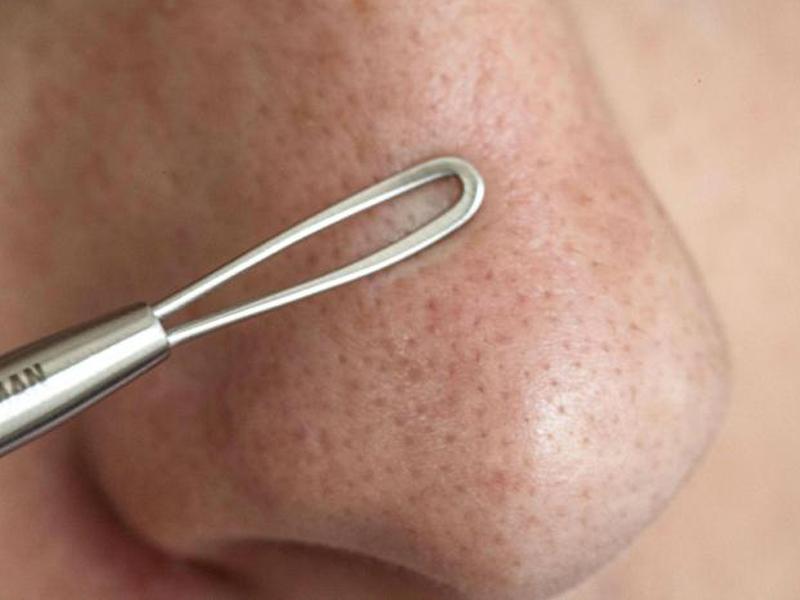 Чем избавиться от угрей на носу в домашних условиях 129