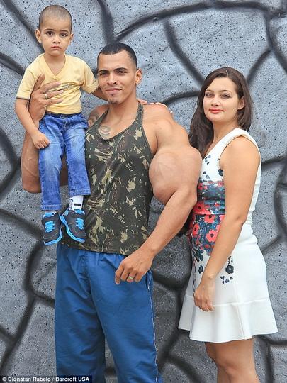 Он хотел накачать мышцы и вот во что он превратился - ФОТО